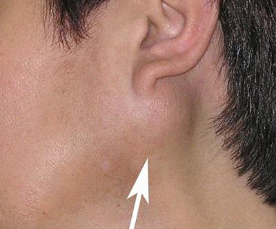 Наиболее частая локализация аденомы – околоушная слюнная железа