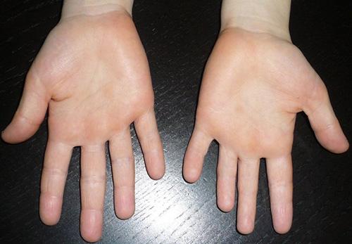 У человека брахидактилия укорочение пальцев