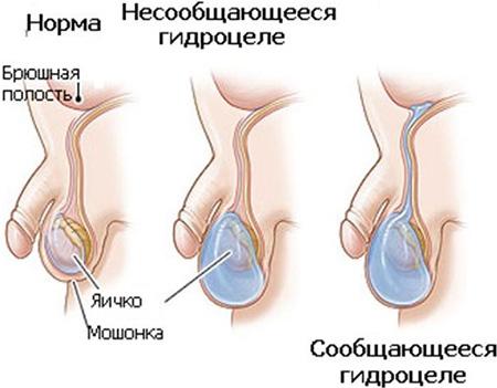 Разновидности гидроцеле