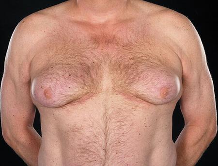 Эстроген-продуцирующий рак яичек может вызвать рост молочных желез у мужчины