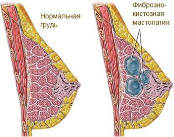 питание при мастопатии молочной железы меню