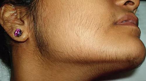 При отсутствии дозревающего фолликула у женщины наблюдается повышение тестостерона
