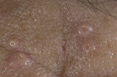 Гиперплазия сальных желез на лице