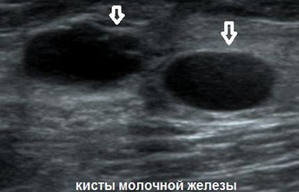 Кисты отчетливо видны на УЗИ молочной железы