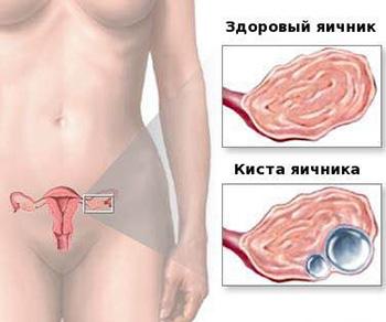 Лечение кисты яичника без операции - отзывы возможно ли