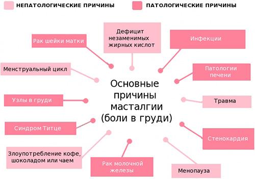 Мастодиния молочной железы: симптомы и лечение