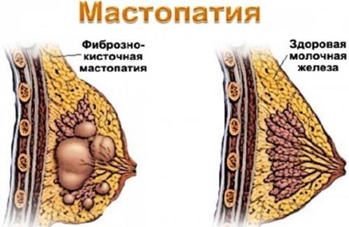 Мастопатия лечение при беременности