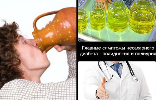 Полиурия (большие объемы выделения мочи) и полидипсия (синдром постоянной жажды) —