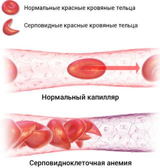 Серповидно-клеточная анемия может стать причиной почечной формы несахарного мочеизнурения