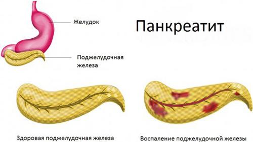 Лечение лекарственными препаратами поджелудочной железы при боли и воспалении