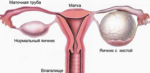 Таблетки противозачаточные при кисте яичника - -