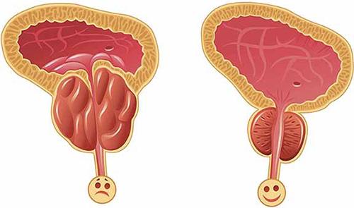 Симптом простатита у мужчин боль как избавиться от болевых ощущений