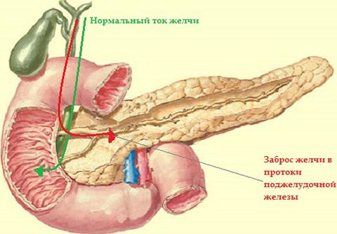Причиной развития заболевания становится заброс желчи в выводящие протоки железы