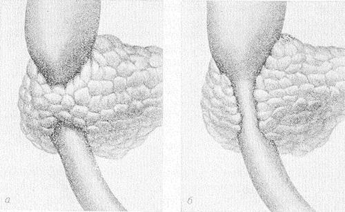Кольцевидная pancreas. В результате такой аномалии развития ткани железы могут полностью (а) или частично (б) обхватывать двенадцатиперстную кишку.
