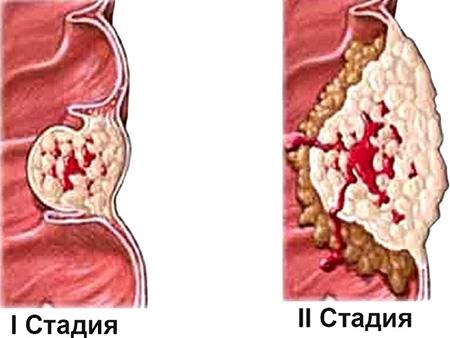 При первой стадии папиллярного рака капсула щитовидной железы не затронута. Начиная со второй стадии происходит распространение процесса на капсулу, что влечет за собой деформацию железы.