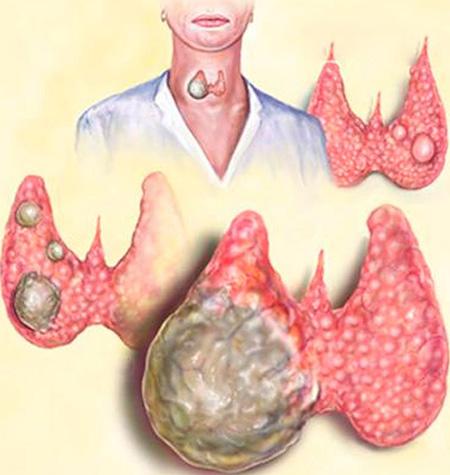 Наиболее часто папиллярный рак щитовидки имеет солидарный (только один) узел, но в редких случаях она может образовывать множественные узлы