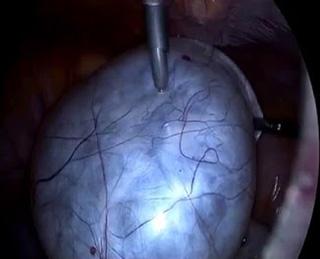 Параовариальная киста яичника лечение без операции