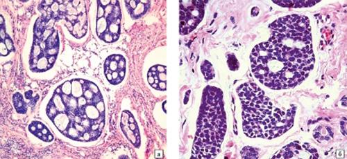 Аденокарцинома околоушной слюнной железы с атипичными, железистоподобными ходами