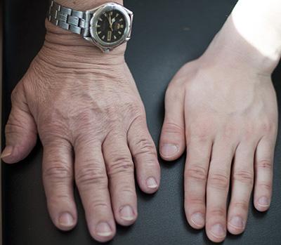 Увеличение размеров отдельных органов не всегда заметно самому пациенту. Иногда оно происходит очень постепенно и выявляется только при возникновении подозрения на соматотропиному.