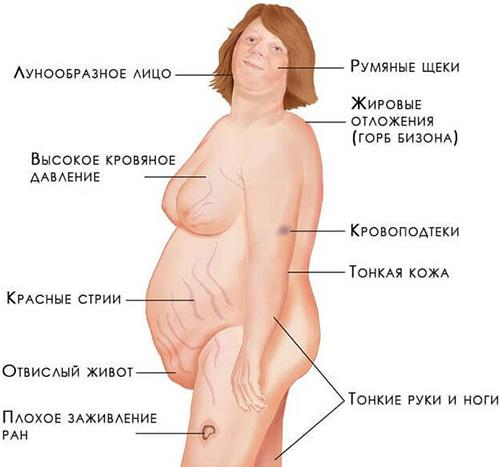 Синдром Иценко-Кушинга предполагает целый ряд симптомов и признаков. Рассматривать их нужно только в комплексе и вместе с эндокринологом, ни в коем случае не прибегая к самооценке и самолечению.