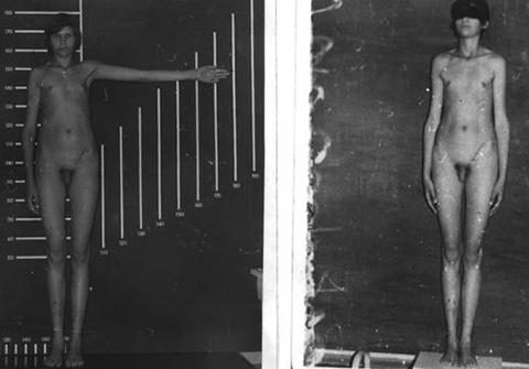 Внешний вид мальчика с данным генетическим заболеванием. Характерен высокий рост, узкие плечи и широкие бедра, длинные руки и ноги.
