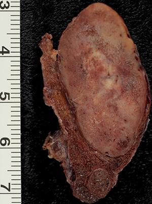 Токсическая аденома редко превышает в размерах 30 мм, но она хорошо прощупывается в области щитовидки