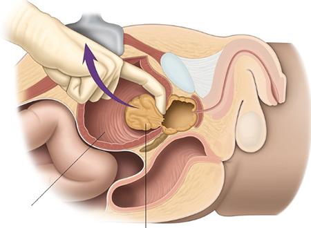 Удаление аденомы простаты у мужчин: операция по хирургическому ...