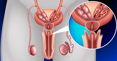 простатиты симптомы у женщин